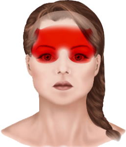 Beverly Hills near Los Angeles tension type headaches