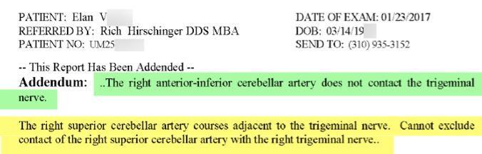 Trigeminal neuralgia Beverly Hills Dr. Rich Hirschinger