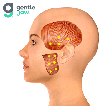 Botox-Injection-Sites-Hirschinger-TMJ.png