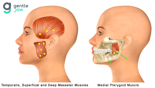 Botox-Injection-Sites-Hirschinger-TMJ-Temporalis-Masseter-Medial-Pterygoid.png